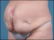 Midline Incisional Hernia Pictures | Hernia Before and After